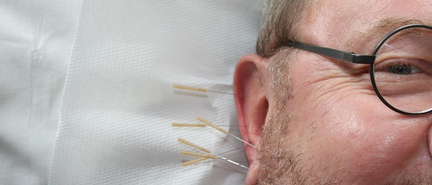 acupuncture-364613_1920